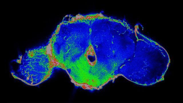 Fruit Fly Research Is Helping To Discover New Anticancer Strategies