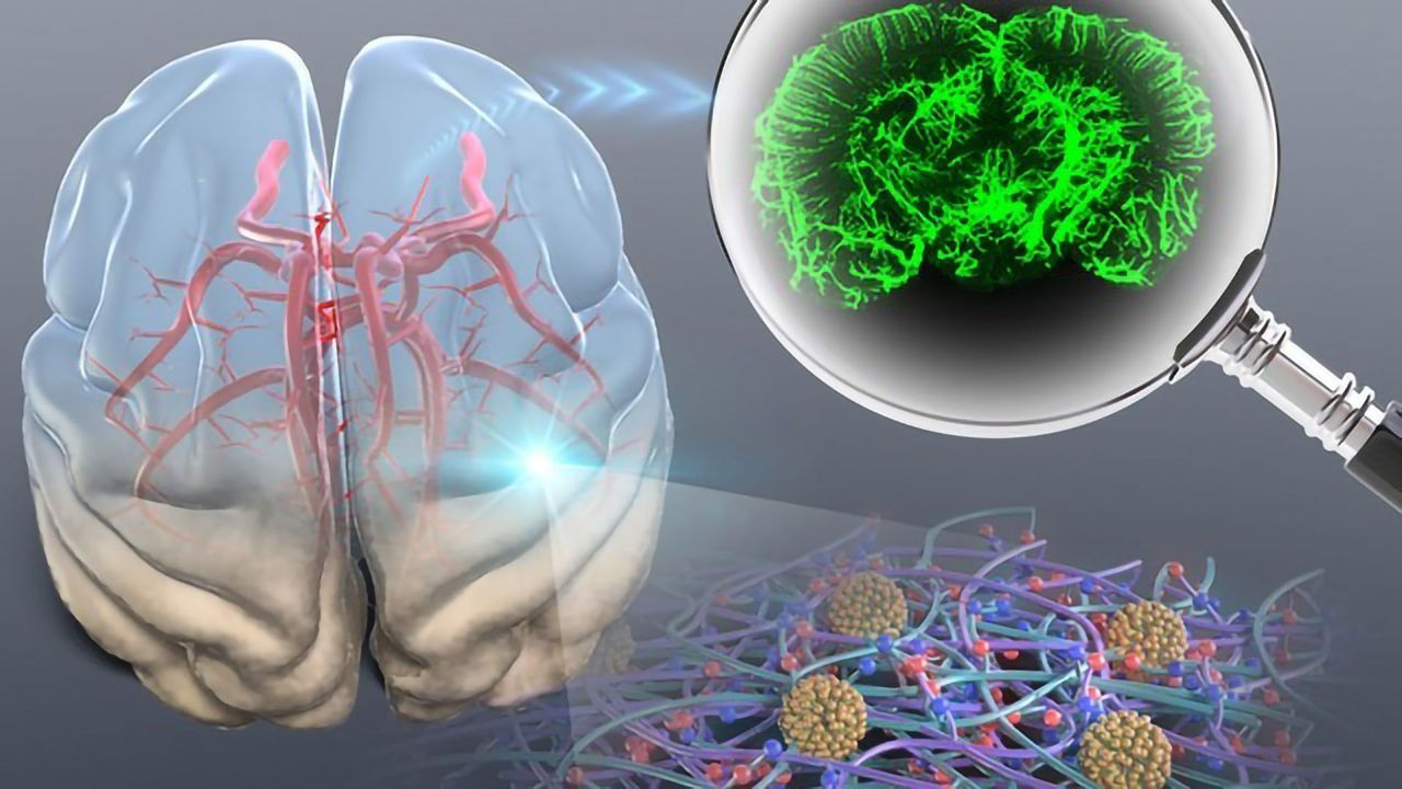 Improvements in Optical Tissue Clearing Help Clinicians To Diagnose Cancer