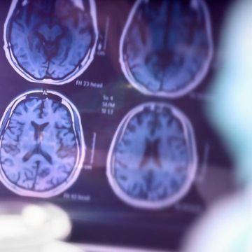 Three Advances in Alzheimer's Disease Diagnostics