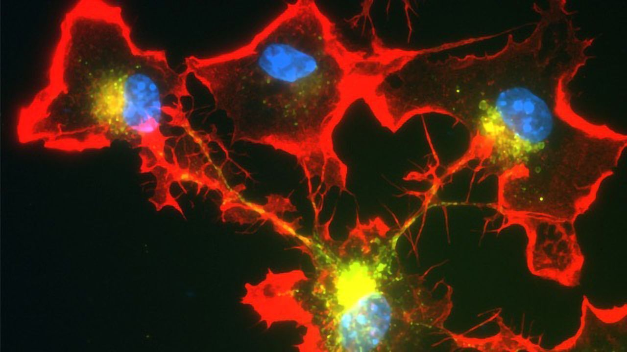 Immune Cells Form Network to Fight Parkinson's Protein