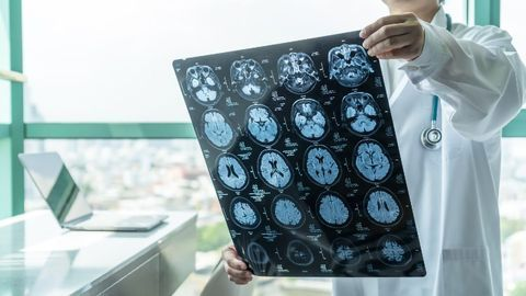 Dementia Symptoms' Appearance Can Be Estimated Via Brain Scan