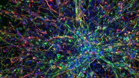 AI Identifies New Drug Combo for Aggressive Childhood Brain Cancer