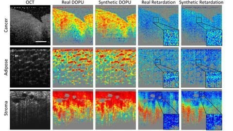 Deep Learning Enhances Cancer Diagnostic Tools