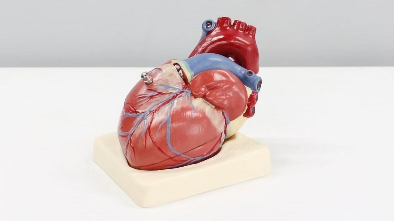 New Cause of Hypertrophic Cardiomyopathy Discovered