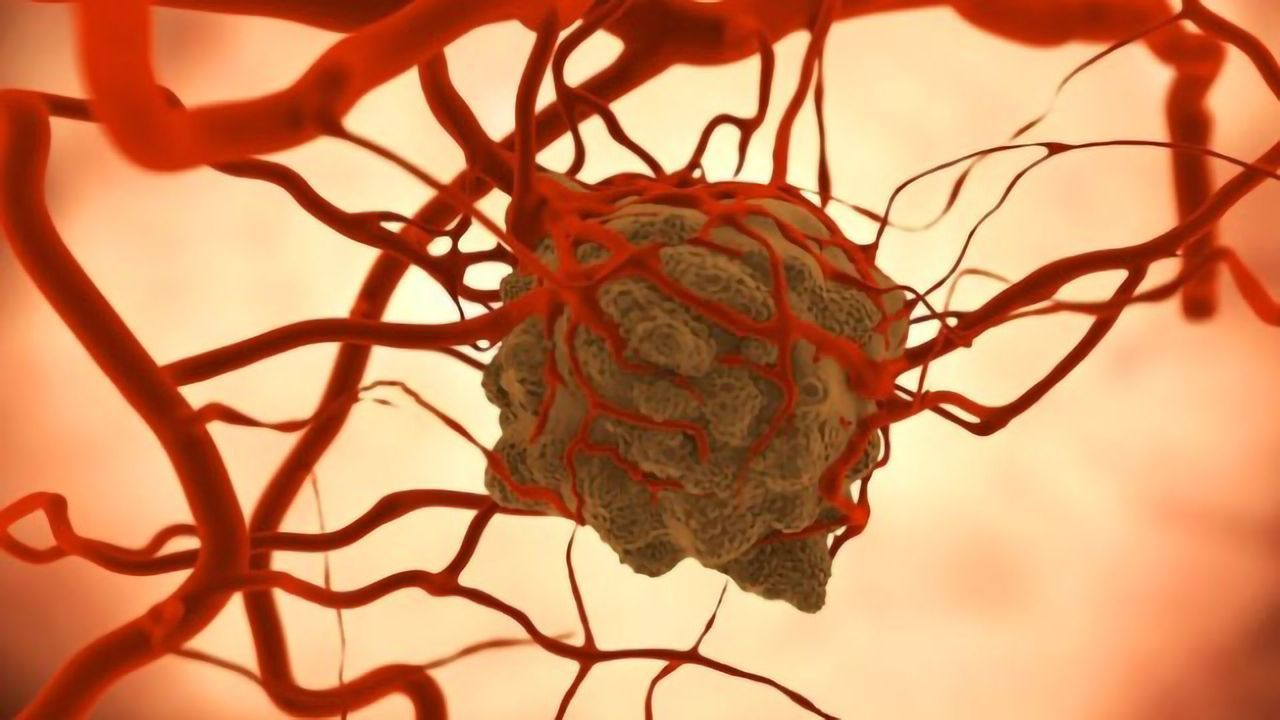 Grant Will Fuel Development of Lab-Grown Mini Tumors for Rare Cancers