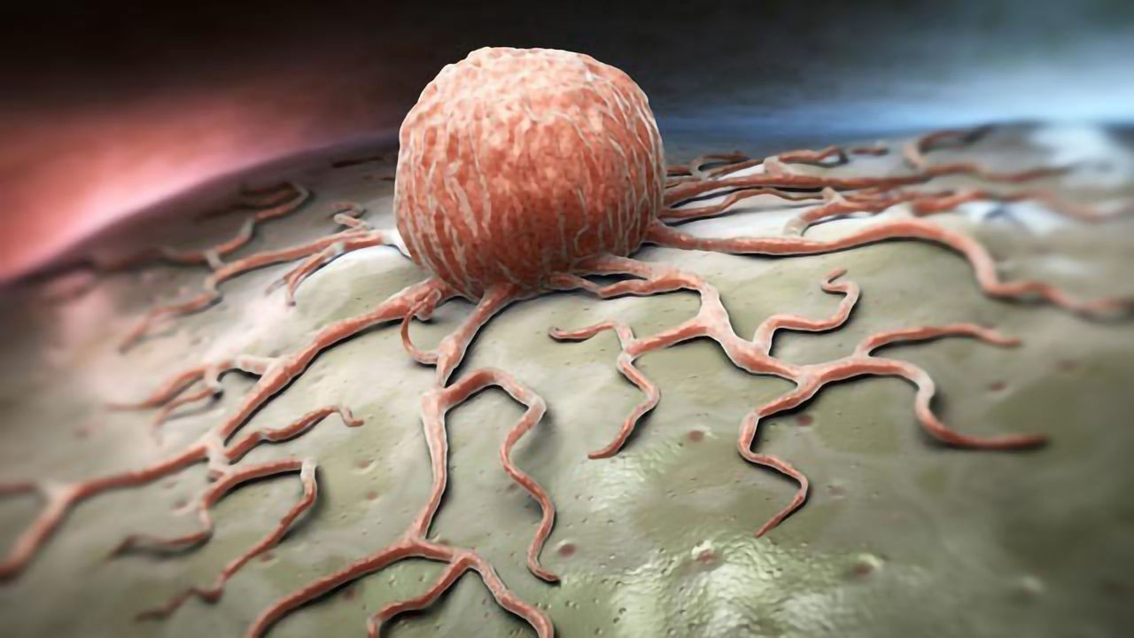 Copper Cysteamine Inhibits the Proliferation of Deep-Seated Tumors