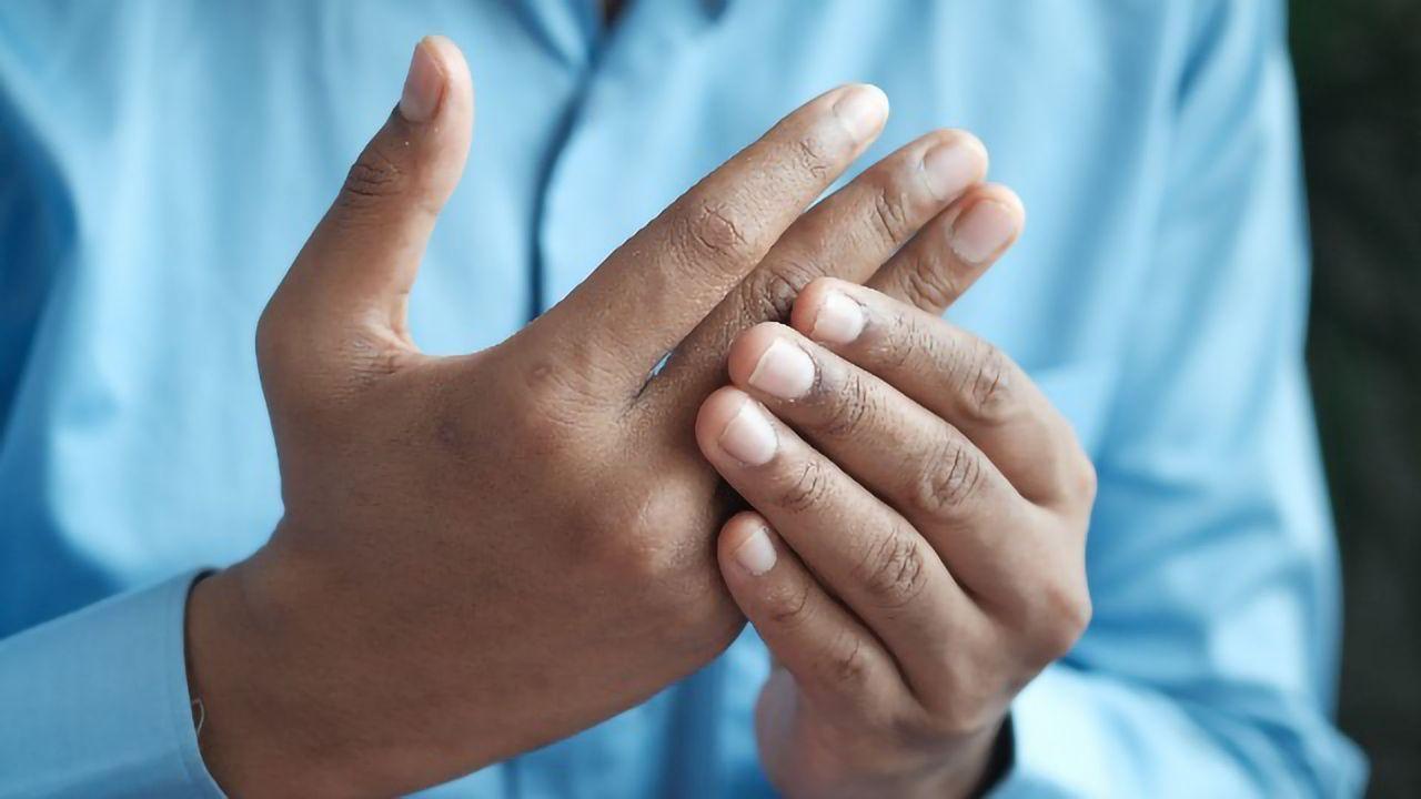 Vaccine Shows Promise in Preventing Rheumatoid Arthritis