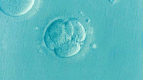 Earliest Effects of Huntington's Identified in Two-Week-Old Embryo