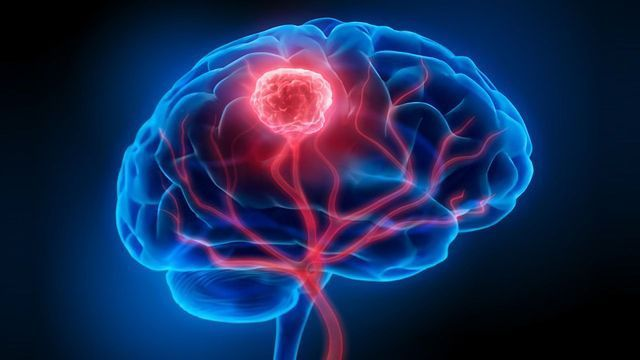 Early Detection of Brain Tumors and Beyond