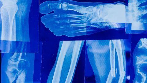 Stem Cell Population Identified That Is Key for Bone Regeneration