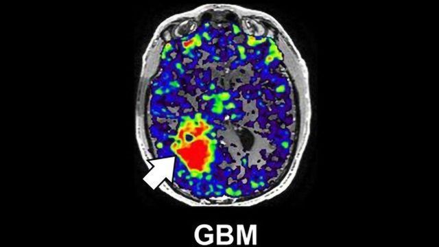 Neuroinflammatory Protein Linked to Worse Glioblastoma Survival in Males