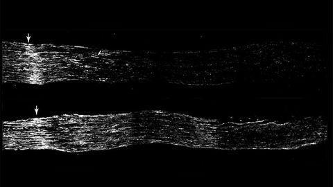 Cholesterol Drug Heals Sensory Neurons in Mice