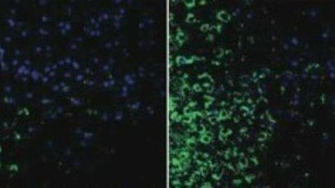 Air Pollution Reduces Sperm Count Through Brain Inflammation