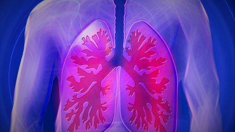 A New Artificial Intelligence Model for a More Accurate Lung Cancer Diagnosis